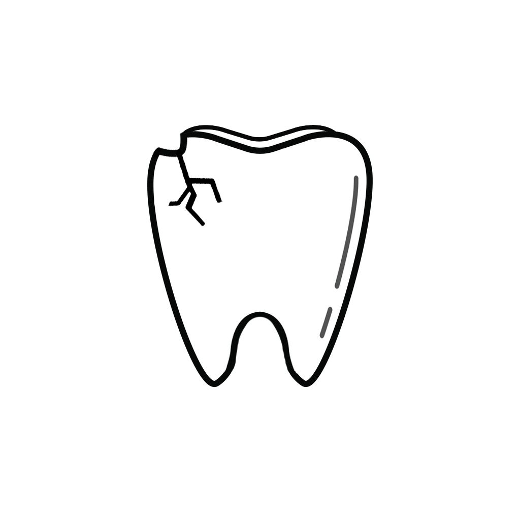 Dentist Chicago | I Chipped a Tooth! What Can I Do?
